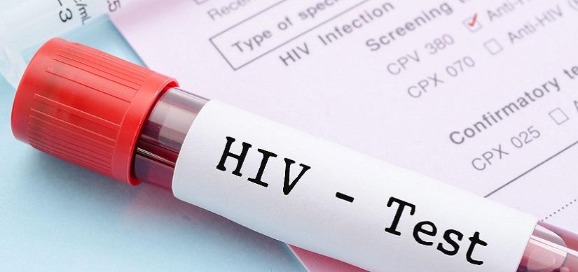 Aids e Hiv: ecco 5 (falsi) miti da sfatare